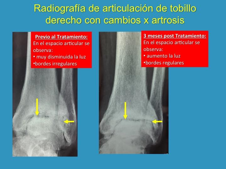 Osteoartrosis de Tobillo